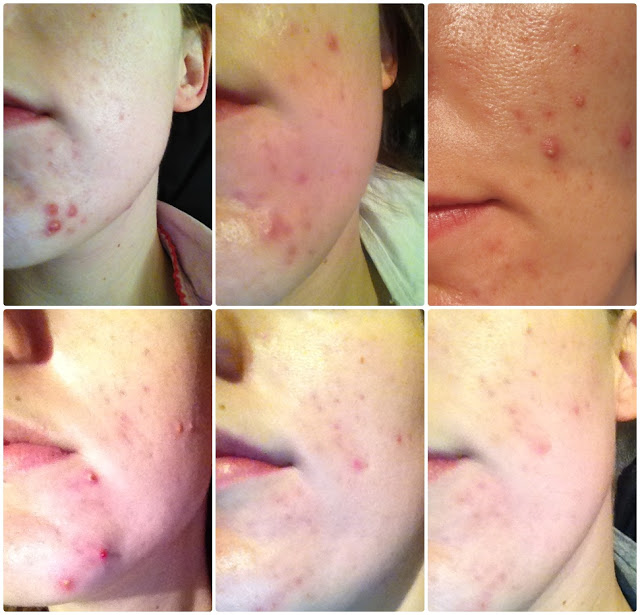 New Skin: Acne Treatment N-Lite Review and Picture Update
