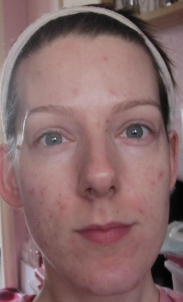 New Skin Update