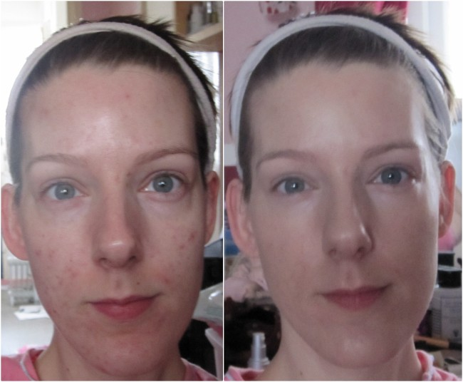 New Skin Before and After