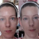 New Skin: Progress and my First Peel