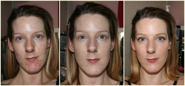 Before, during, after.  I haven't added any extra products for concealing on the after picture other than under eye concealer.