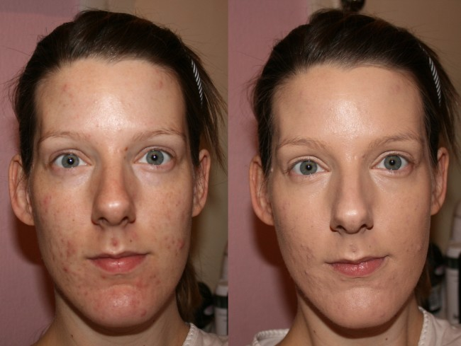 La Prairie Anti-Aging Foundation Before and After