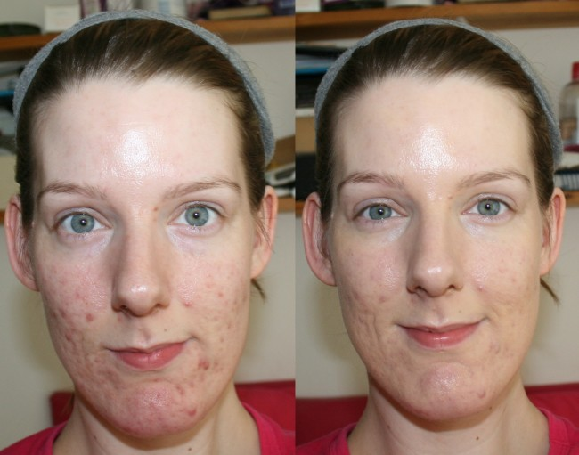 BareMinerals BareSkin Foundation Before and After