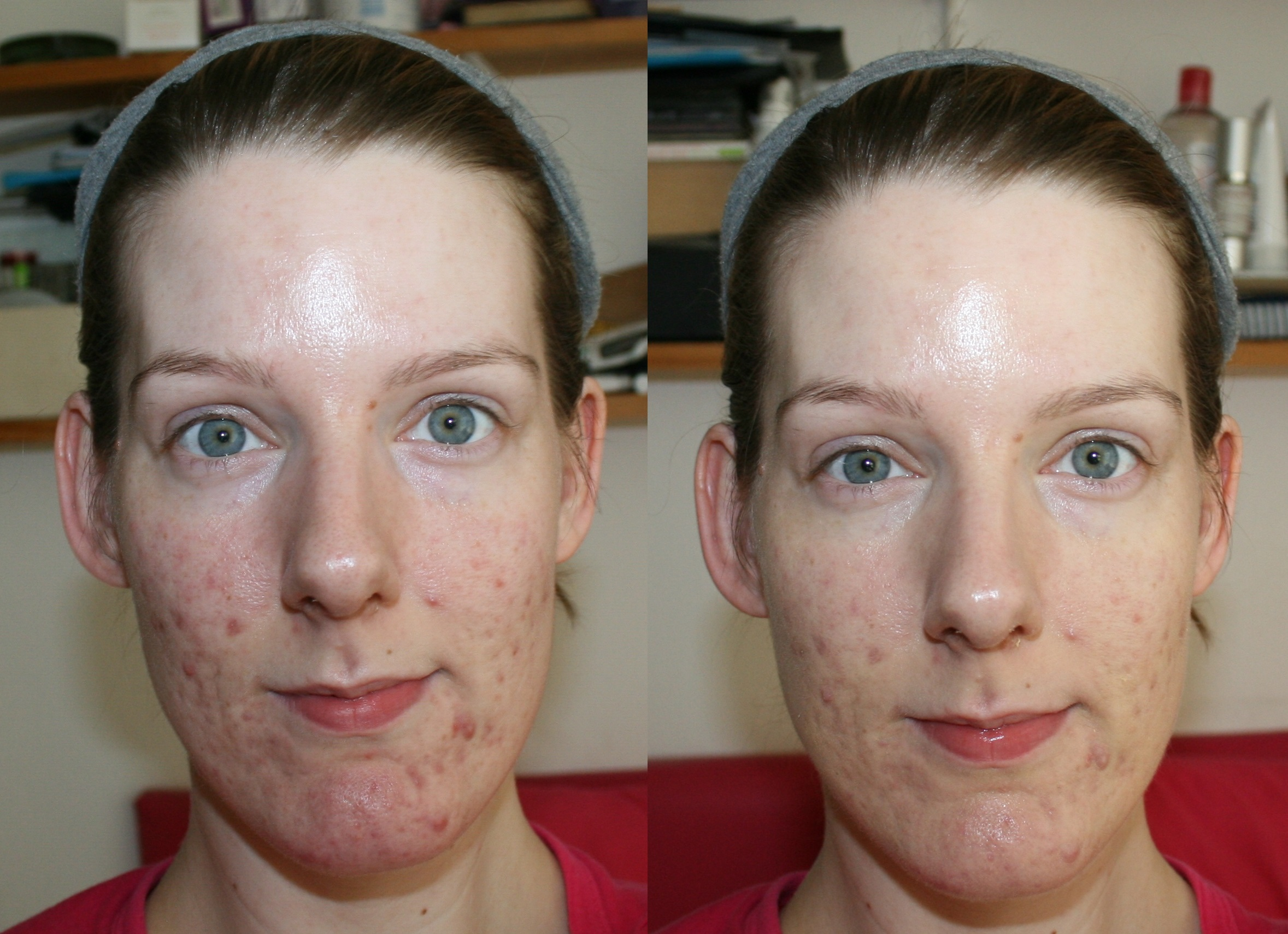 bareminerals prime time before and after. bareminerals neutralizing foundation primer before and after bareminerals prime time a