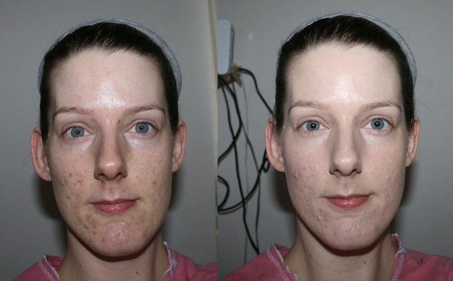 Oxygenetix Oxygenating Acne Control Foundation before and after