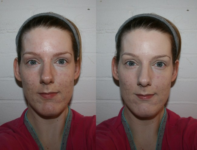 Before with colour-correction, after with just foundation.