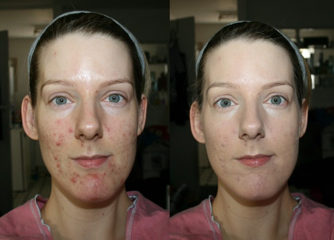 BD Trade Secrets Foundation base products before and after