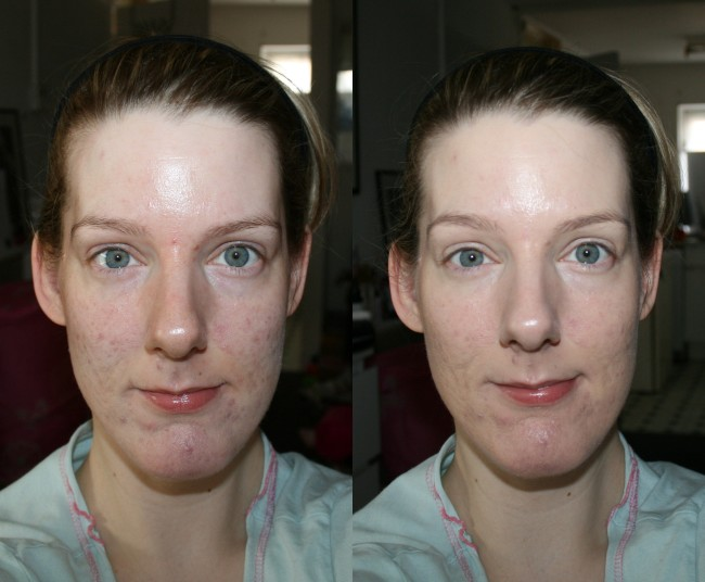 Lancome Miracle Cushion Foundation Before and After