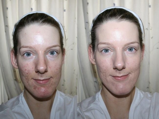 Iope Air Cushion Foundation before and after