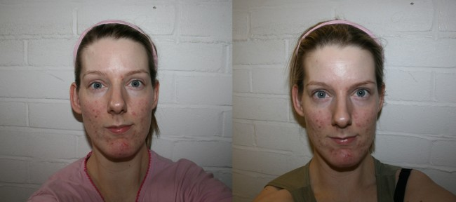 Left to right - a few hours after 1st treatment, 24 hours after 1st treatment.