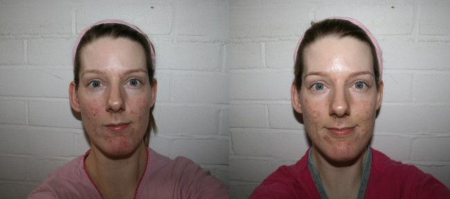 Left to right - before 1st treatment, after 3rd treatment.