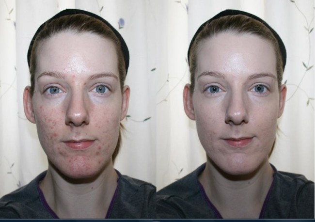 Vichy Dermablend Porcelain 05 Before and After
