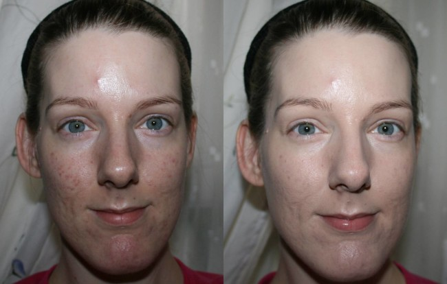 Boots No7 Airbrush Away Foundation Before and After