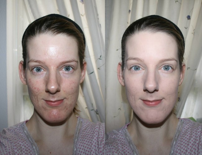 bareMinerals Blemish Remedy Before and After