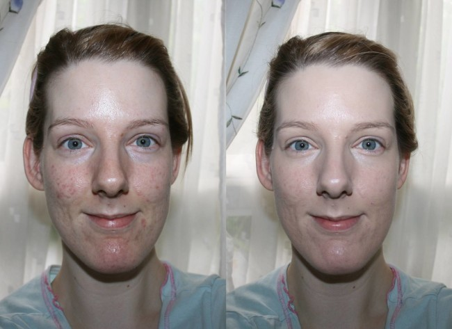 L'Oreal True Match Genius Foundation Before and After