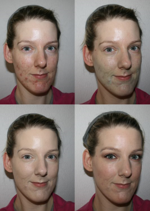 Revlon ColorStay Makeup Foundation Before and After