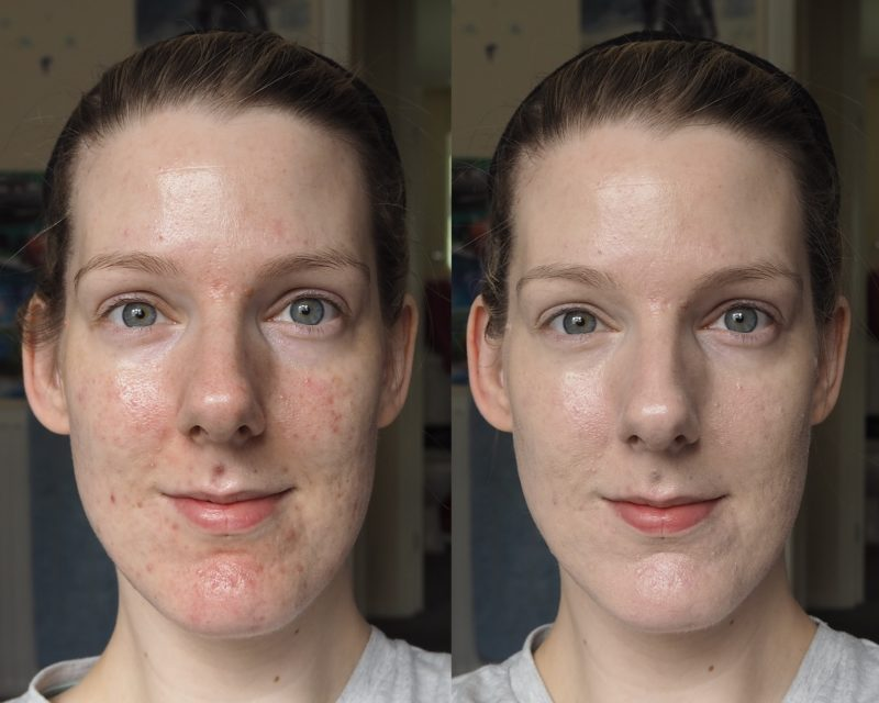 Shiseido Synchro Skin Glow Luminizing Fluid Foundation Before and After Face Pictures