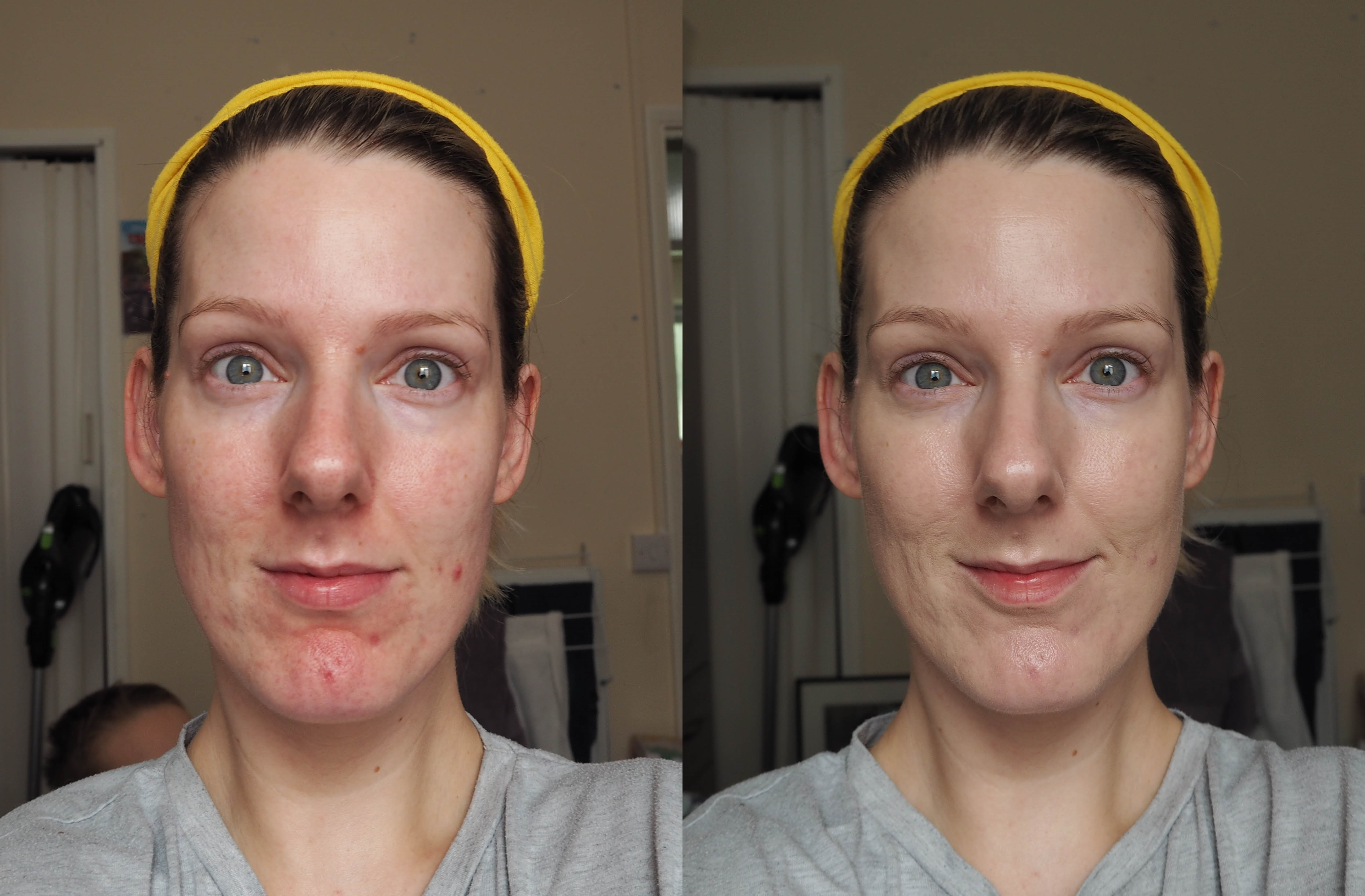 Missha M Perfect Cover BB Cream SPF42 Before and After