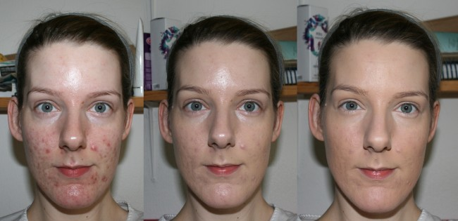 Tart High Coverage Before and After