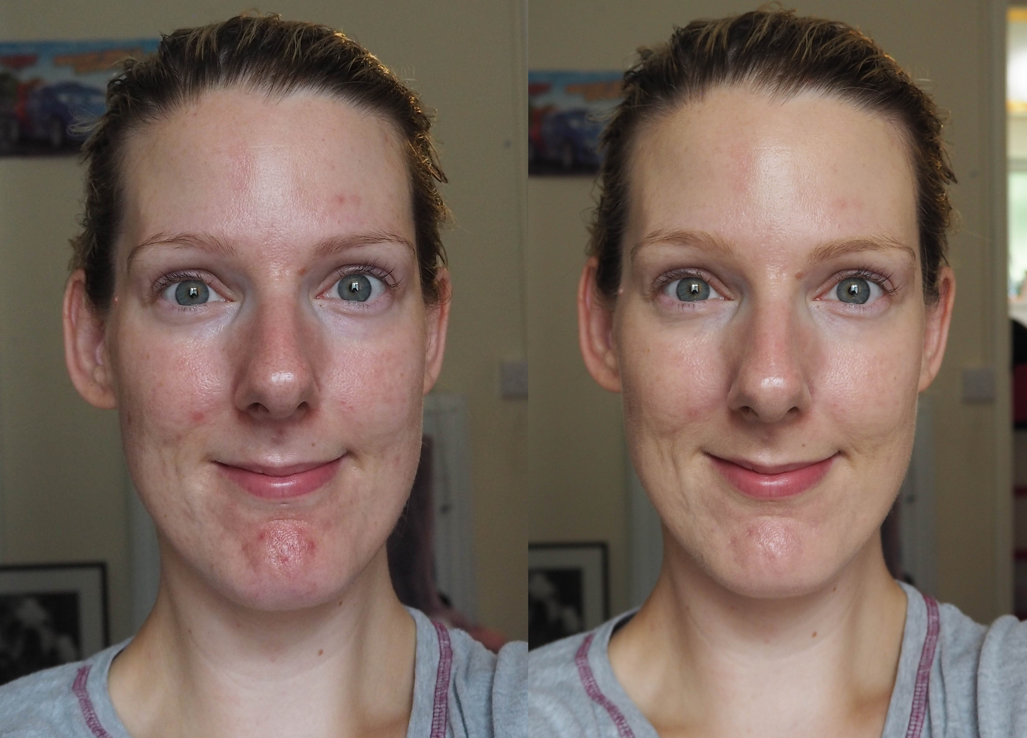 Revlon Photoready Candid Foundation before and after face pictures